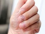 Covid Nails: కరోనా వచ్చి వెళ్ళిందని మీ గోర్లు కూడా తెలుపుతాయి.. ఎలాగో మీకు తెలుసా?