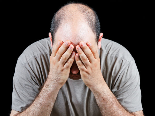 Male pattern hair loss of baldness