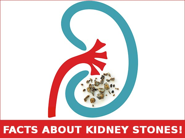 Six Home Remedies That Work Like Magic To Get Rid Of Kidney Stones