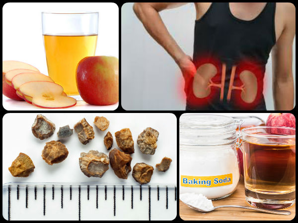 Top 10 Effective Home Remedies To Flush Out Kidney Stones