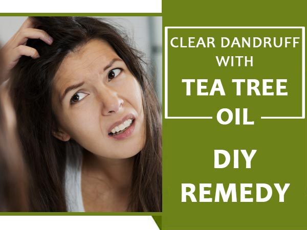 5 DIY Tea Tree Oil Remedies For 99% Dandruff Clearance!