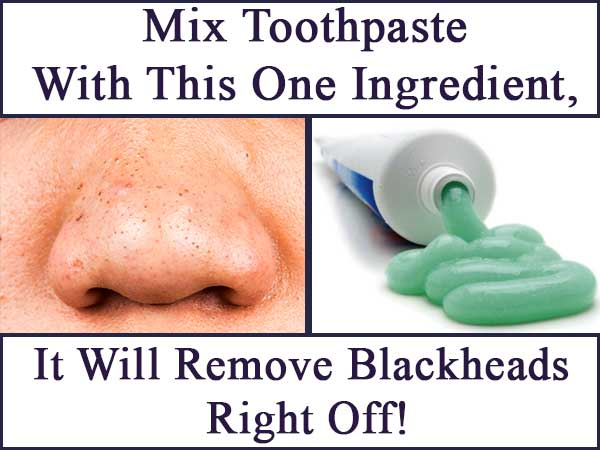 Mix Toothpaste With This One Ingredient, It Will Remove Blackheads Right Off!