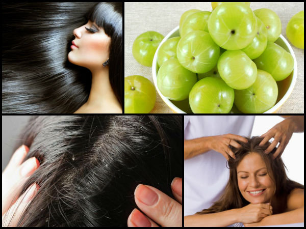 Amla: Benefits For Hair & How To Use,