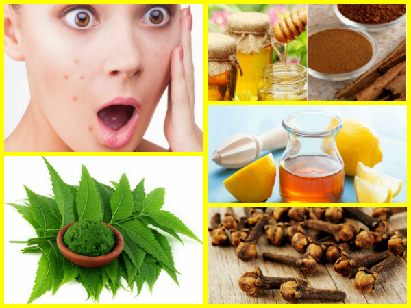 10 Ayurvedic Beauty Tips for Pimples