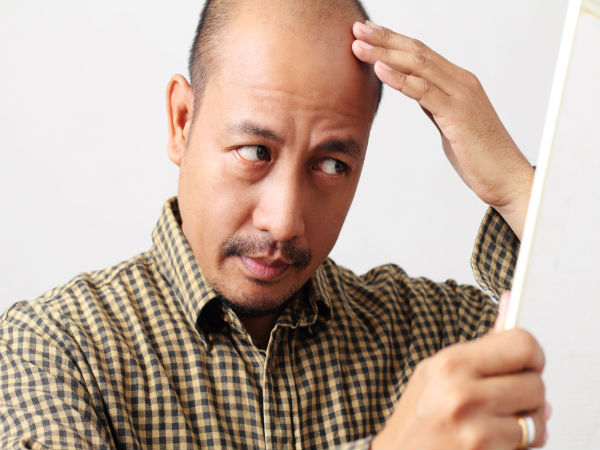 causes for hair loss in men
