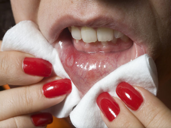 home remedy for mouth ulcers