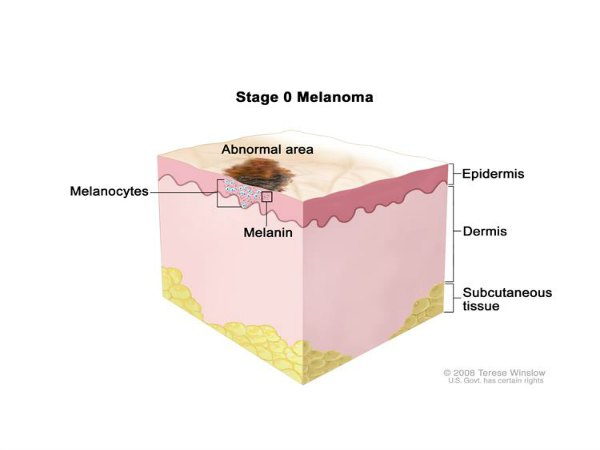 The Complete Guide to Melanoma: Symptoms