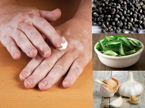 10 Amazingly Effective Home Remedies To Treat Leucoderma