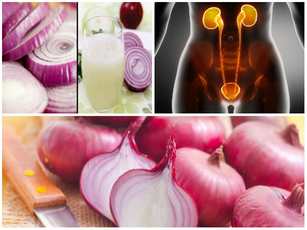 Onion Remedy Helps to Cleanse Your Kidneys