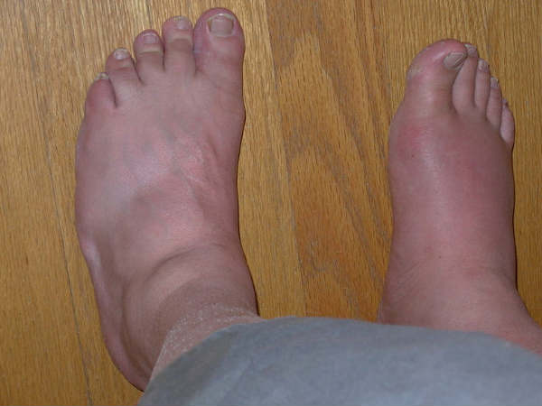 home remedies gout treatment