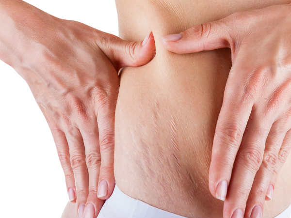 7 Effective Ways To Fight Against Stretch Marks Using Castor Oil