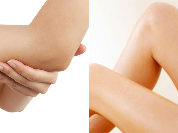 Say Goodbye To Dark Elbows And Knees With These Remedies