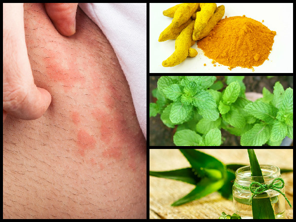 Effective home remedies for hives | Home Remedies For Itchy Skin| Natural Cure For Itchy Skin| How To Get Rid Of Itchy Skin All Over Your Body| Itchy Skin Treatment