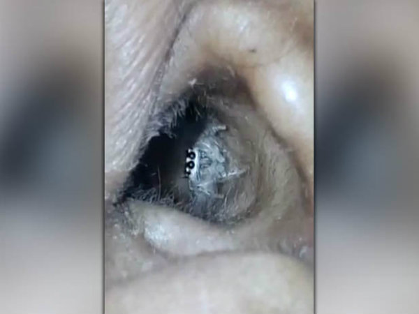 Womans Headache Turns Out To Be Due To A Spider Living In Her Ear!