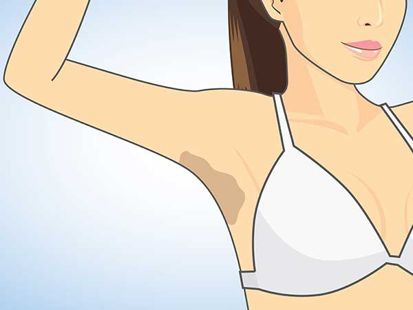 Get Rid Of Dark Armpits In 7 Days