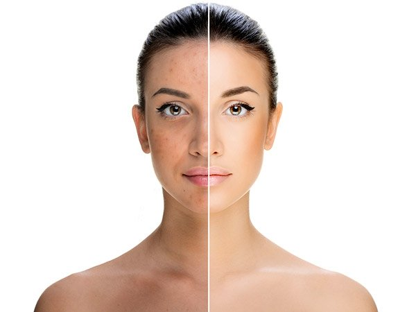 Does Castor Oil Help In Reducing Pigmentation?