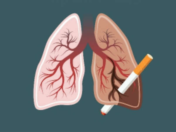 World Lung Cancer Day: Lung cancer no more a smoker's disease: Study,
