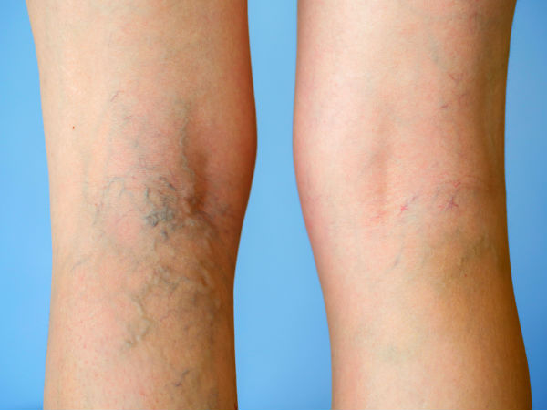 7 Silent Signs Of Deep Vein Thrombosis That You Must Beware Of!