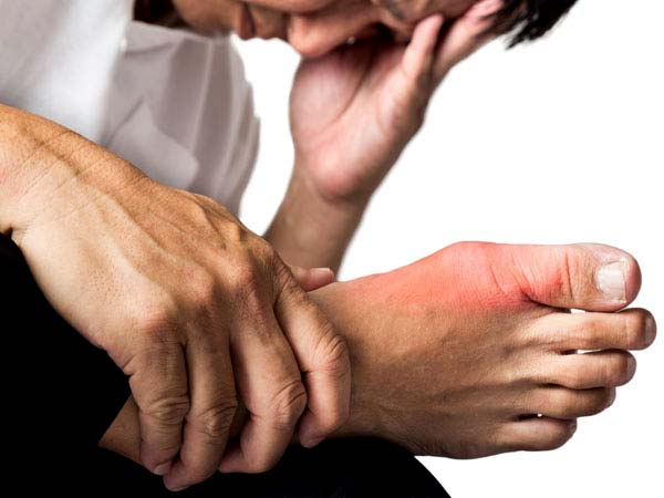 7 Foods To Avoid If You Have Gout Disease