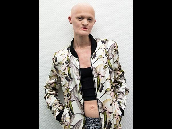 She Is A Famous Model Who Has A Rare Genetic Disorder