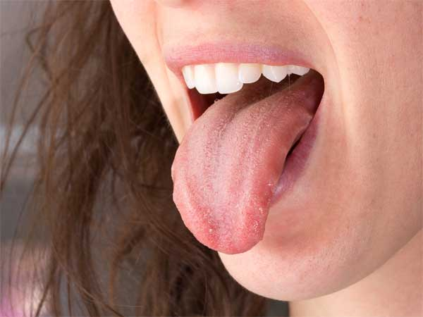 What Causes Too Much Saliva In The Mouth?