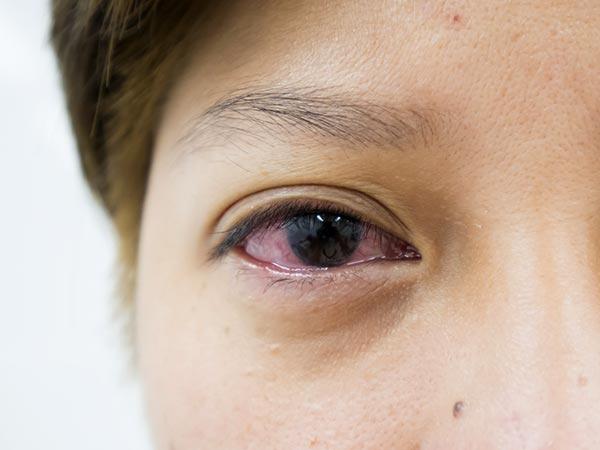 బ్లాక్- ఐ కారణాలు, చికిత్సా విధానాలు