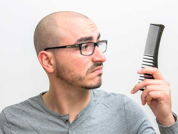 These Things Will Make You Bald: How To Reduce Hair Loss
