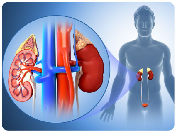 Pyelonephritis: Symptoms, Causes, Risk Factors And Preventions