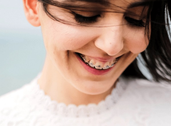 Easy Remedies To Keep Your Teeth White Wearing Braces