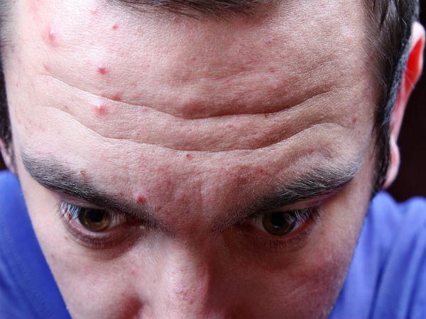 Health Tips: ముఖం మీద మొటిమలు కూడా డేంజర్ !! ఎందుకంటే...