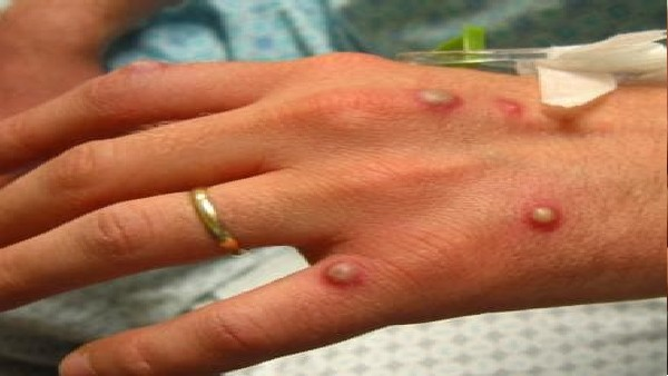 Monkeypox: కరోనా సమయంలో వణికిస్తోన్న మరో వింత వ్యాధి, లక్షణాలు, చికిత్స ఉందా??