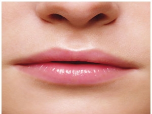 Natural Remedies Bright Lips Aid