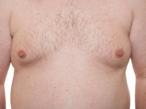 Effective Exercises Reduce Man Boobs