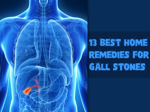 Best Home Remedies Gall Stones