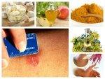 Home Remedies Ringworm