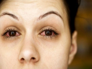 How To Treat Foreign Bodies In The Eye