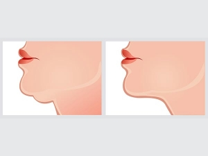 What Your Chin Really Says About You