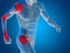Does Too Much Exercise Weaken The Bone