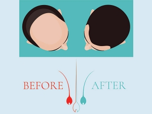 How Garlic Can Treat Your Hair Loss Problem