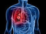 Foods That Boost Lung Health