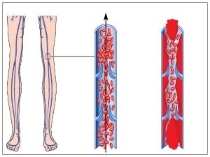 Beware Abnormal Blood Clots