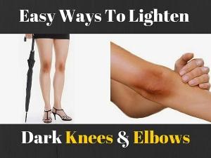 Home Remedies Soften Rough Elbows Knees