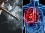 Facts You Must Know About Lung Cancer