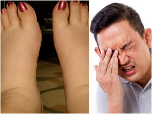 Different Types Swelling Your Body You Shouldn T Ignore