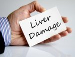 Surprising Signs Liver Damage That We Did Not Know