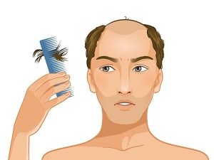 Home Remedies Control Hair Loss