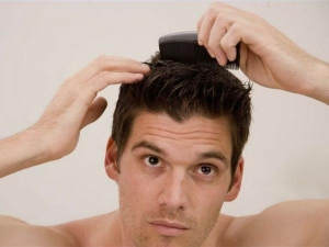 Top 7 Kitchen Ingredients Get Rid Dandruff At Home