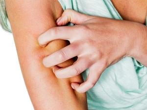 Herbal Remedies Treat Ringworms