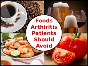 Attention 8 Foods That Arthritis Patients Should Strictly A