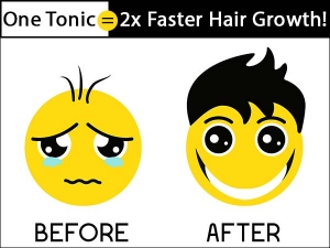 Apply This 1 Tonic Before Hair Wash Make Your Hair Grow 2x